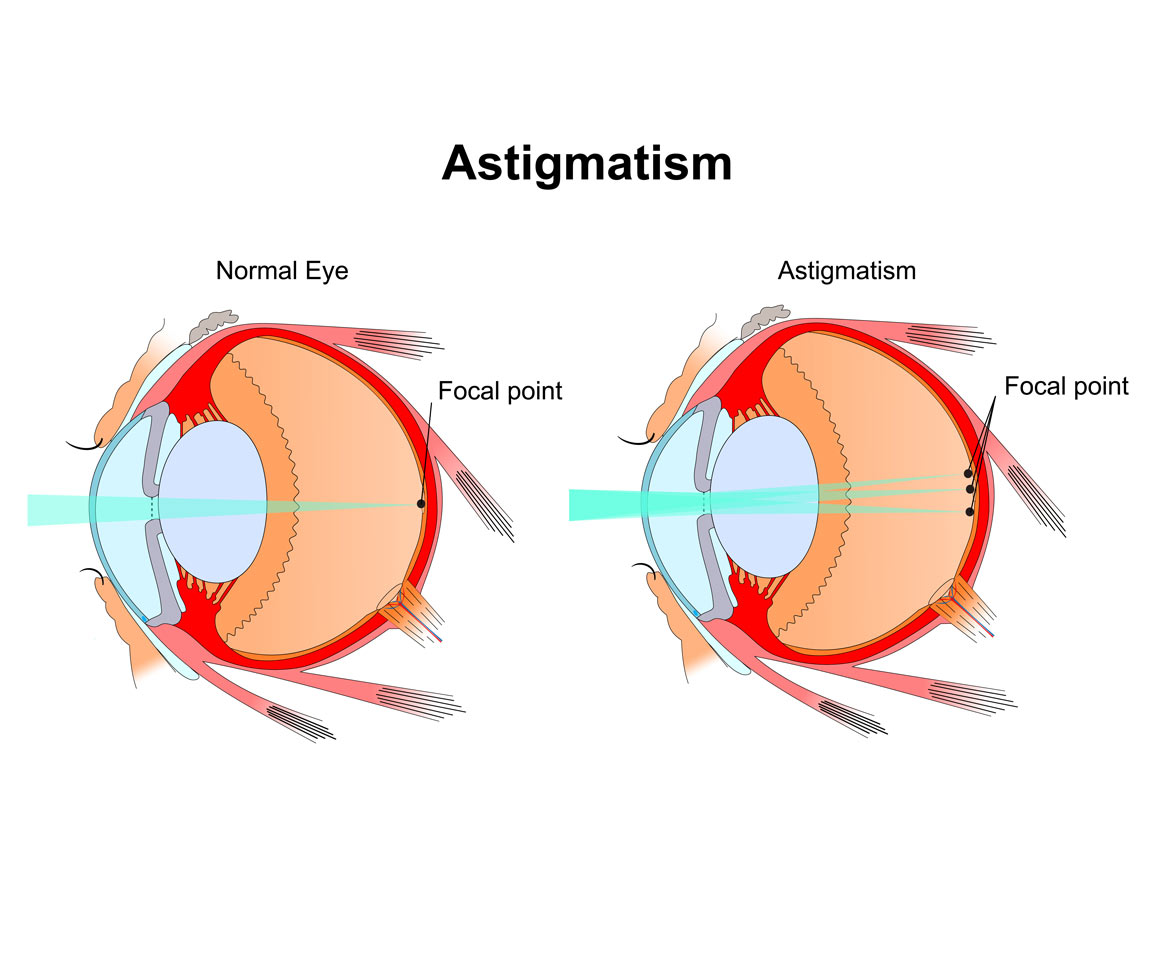 Woman with astigmatism